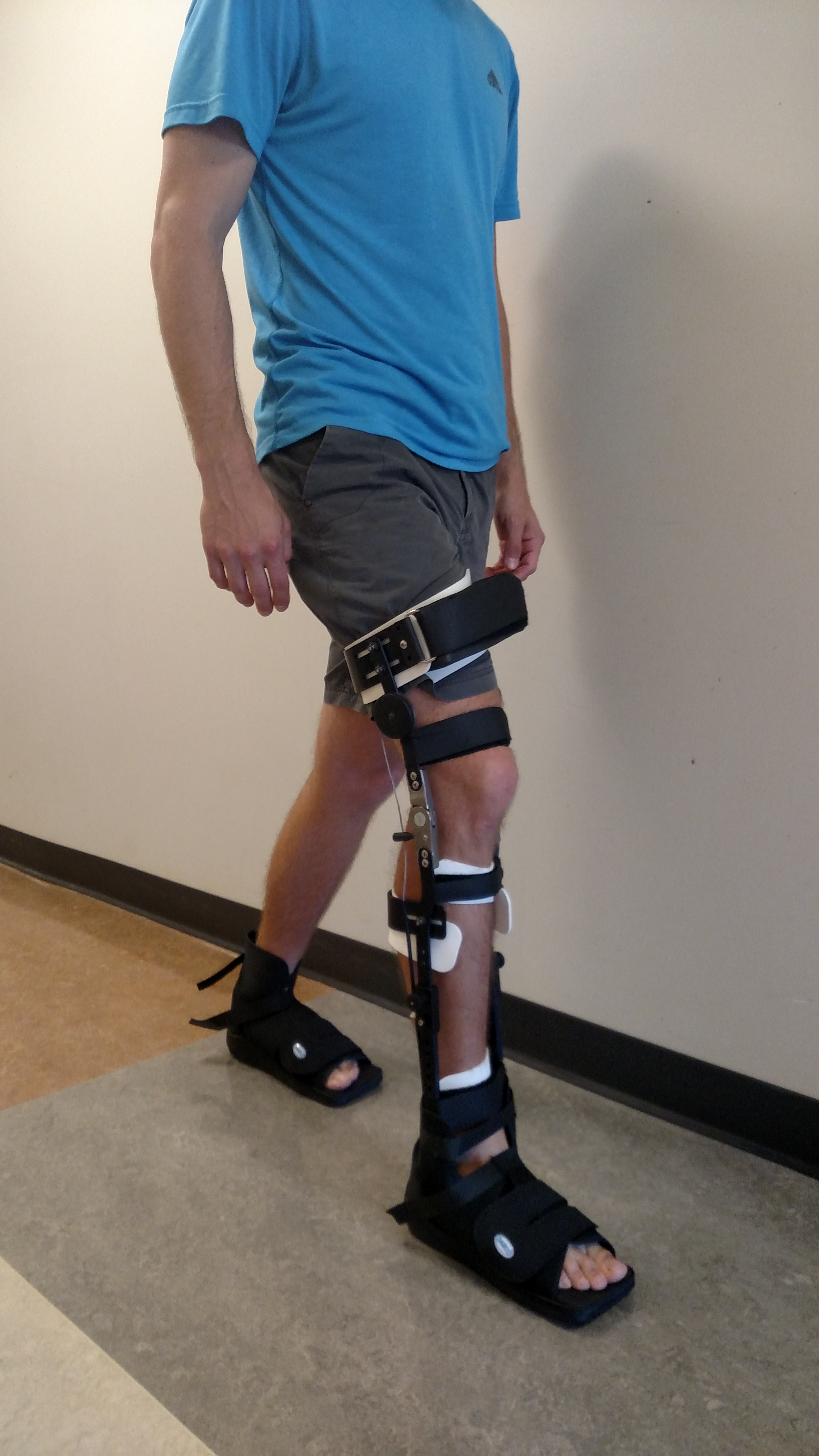 Applying stance phase knee control during gait for people with stroke undergoing inpatient rehabilitation.