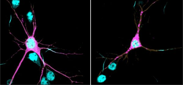 Right, βII-spectrin (magenta) forms aggregates throughout neurites of a mouse cortical neuron expressing one of the human SPTBN1 variants. (Lorenzo Lab)