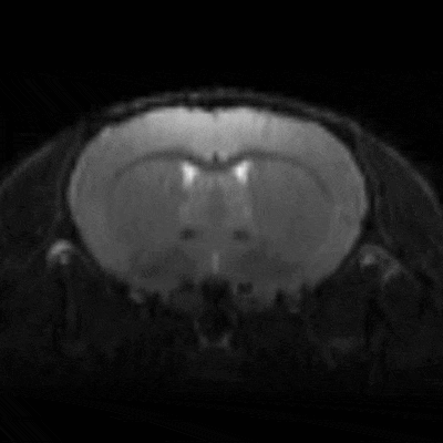 3D Mouse Brain