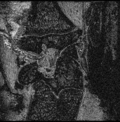 3D Rat Knee T1-weighted MRI Overnight