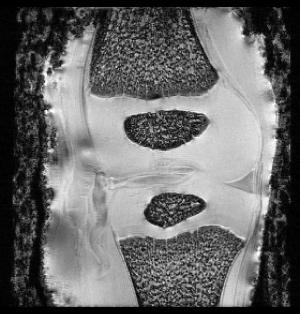 3D Pig Knee T1-weighted MRI Overnight