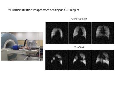 19F-MRI