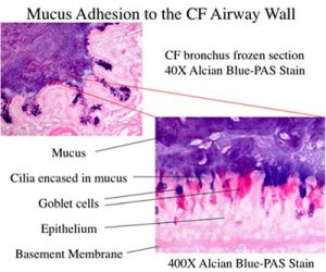 Figure 3. Frozen section of a human cystic fibrosis airway excised during lung transplantation, stained for mucus. Note the adhesion between the mucus in the lumen and the airway wall.