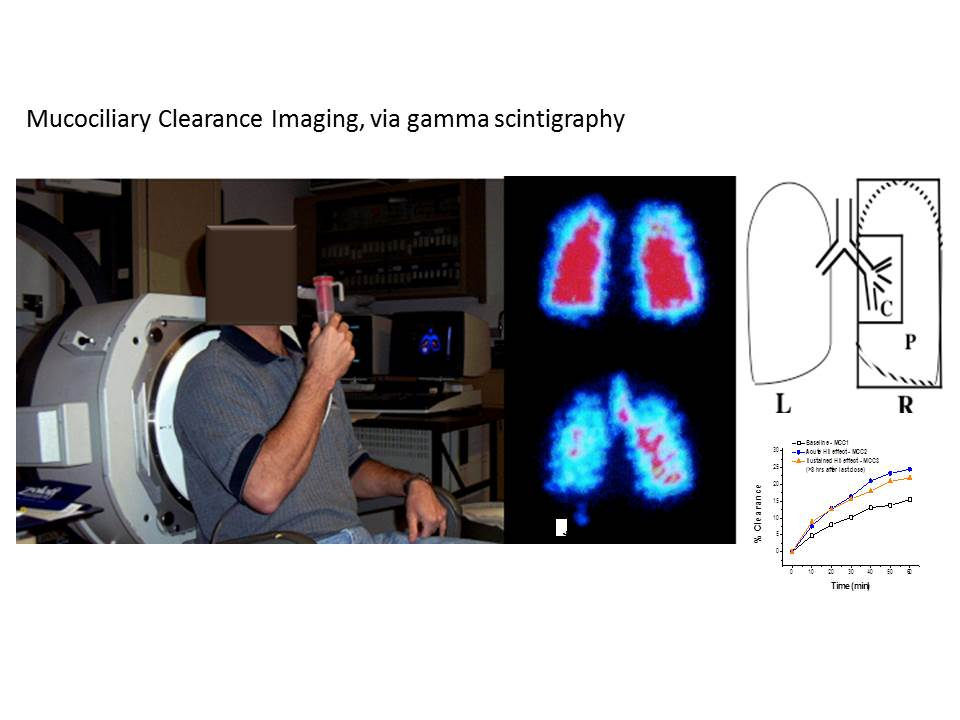 Mucociliary Clearance Imaging, via gamma scintigraphy