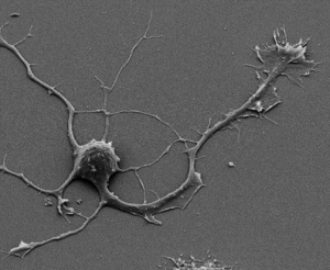 Scanning electron microscopy of a neuron