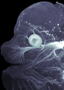 Light-sheet microscopy of nerves in mouse embryo
