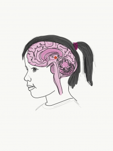 Pediatric Brain Tumor Treatment - UNC Neurosurgery