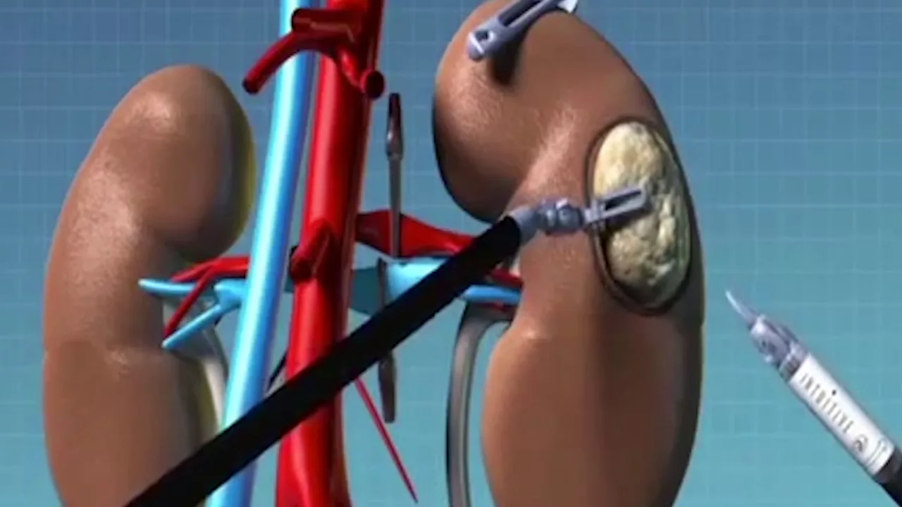 The Kidney and Kidney Cancers