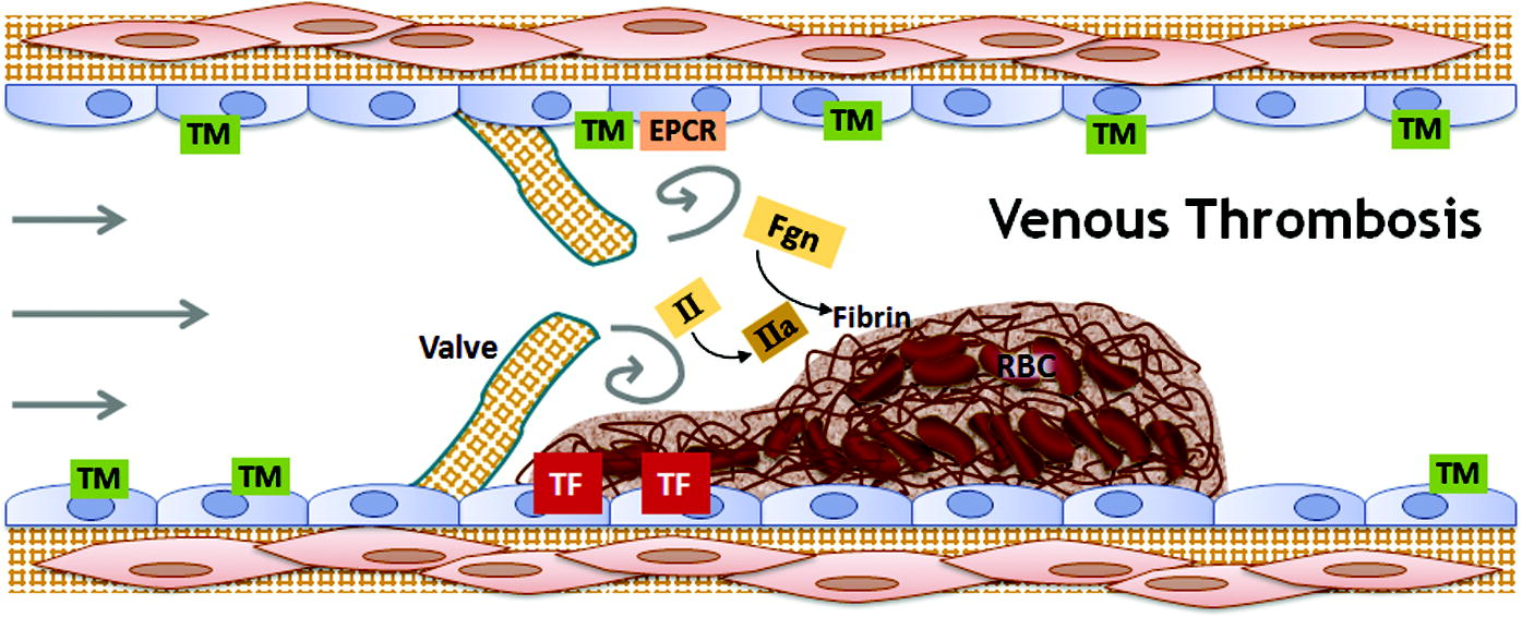 "Interplay among abnormalities in blood components, the vasculature, and blood flow contribute to the development of venous thrombosis. Venous thrombosis involves the formation of fibrin-rich ""red clots"" that result from exposure of procoagulant activity on intact endothelium plus plasma hypercoagulability, in reduced or static blood flow. Venous thrombi are thought to initiate behind valve pockets, in which reduced or static flow decreases wall shear stress that normally regulates endothelial cell phenotype. TM = thrombomodulin; EPCR = endothelial protein C receptor; II = prothrombin; IIa = thrombin; TF = tissue factor; Fgn = fibrinogen; RBC = red blood cells."
